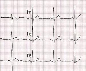 Représentaton graphique d'une fréquence cardiaque