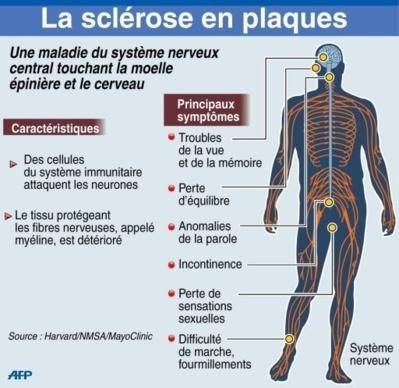 Lancement d'essais thérapeutiques contre la sclérose en plaques