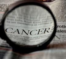 Des cancers différents selon le milieu social